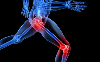 Joint pain relief using natural solutions
