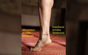 Injury Proof Your Run – Achilles Tendonitis Treatment